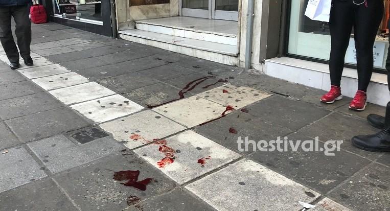 Σοκ στη Θεσσαλονίκη: Τον μαχαίρωσε για να του κλέψει το κινητό – ΦΩΤΟ 700161 43dda9442b bd280d5900faabd1