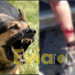 , ΣΟΚ στην Ερέτρια: 55χρονη δέχθηκε άγρια επίθεση από αδέσποτα – Παραλίγο να χάσει το πόδι της [ΦΩΤΟΓΡΑΦΙΑ], Eviathema.gr   Εύβοια Τοπ Νέα Ειδήσεις
