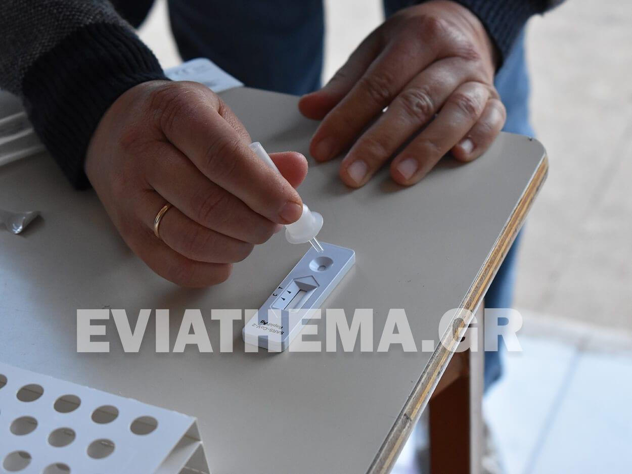 Self test : Πρεμιέρα σε ιδιωτικό και δημόσιο τομέα, Self test : Πρεμιέρα σε ιδιωτικό και δημόσιο τομέα – Πώς ένα θετικό τεστ μπορεί να οδηγήσει σε υποχρεωτική υπερωρία, Eviathema.gr | ΕΥΒΟΙΑ ΝΕΑ - Νέα και ειδήσεις από όλη την Εύβοια